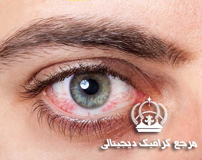 آموزش از بین بردن قرمزی چشم در فتوشاپ